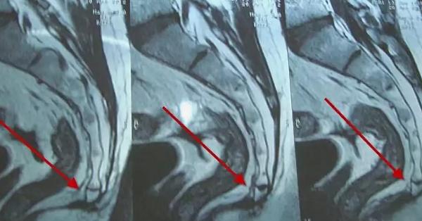 Перелом копчика на МРТ