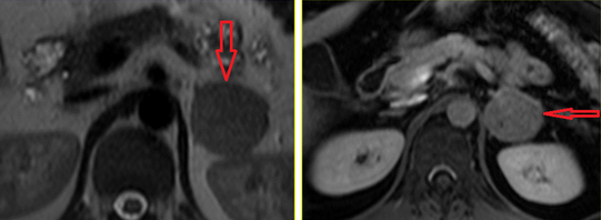 Диета перед МРТ почек и надпочечников