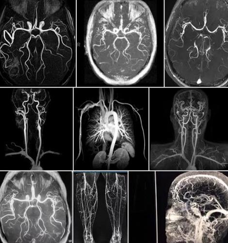 Опасно ли МРТ сосудов
