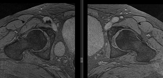 Заболевания тазобедренного сустава, что выявляет МРТ