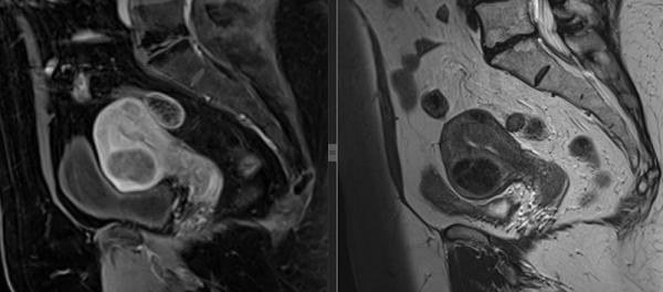 Как делают МРТ яичников и маточных труб