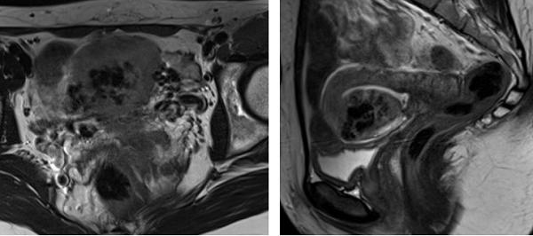 На Т2-ВИ в аксиальной и сагиттальной плоскостях определяются МР-признаки артериовенозной мальформации матки