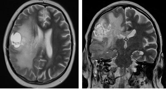 МРТ головного мозга показывает эпилепсию